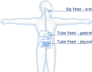 enteral nutrition (administered as sip or tube feed via the gastrointestinal tract)